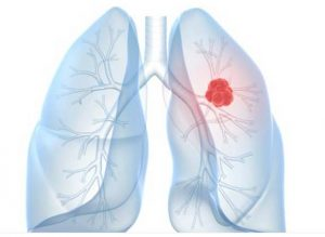 lung cancer patient care